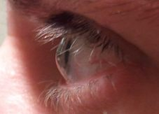 Profile view of eye with keratoconus
