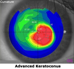 Advanced Keratoconus best treated with scleral contacts