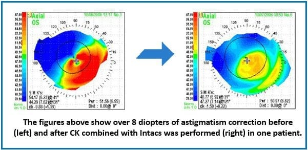 Before and after CK combined with Intacs