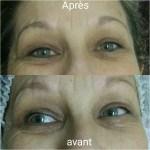 kerato-bordeaux-probleme-de-peau-vieillissement-de-la-peau-sur-visage-2