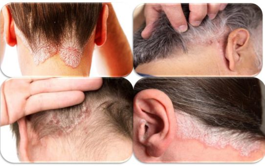 The Causes of Scalp Psoriasis