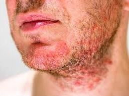 Dermatitis on Face Causes, Triggers, and Treatments