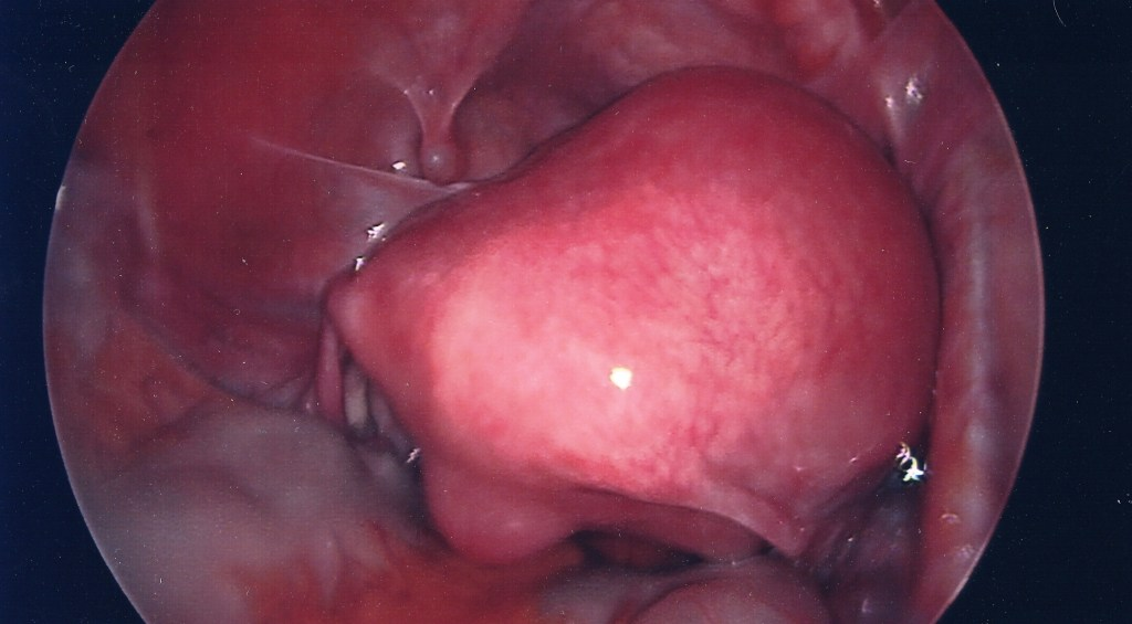This is my uterus with a massive fibroid attached. The main fibroid turned out to be larger than my uterus.