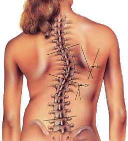 Scoliosis – the health issue that rules my world!