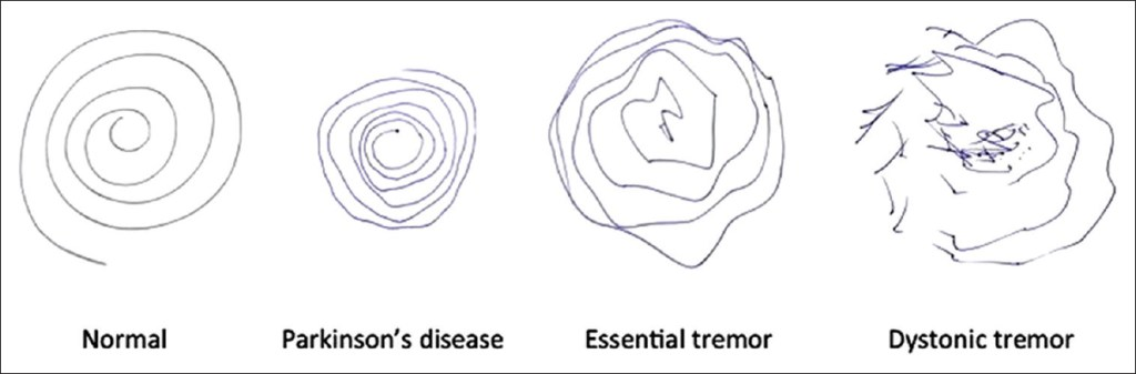 Spiral test showing difference between Parkinson's, Essential Tremor and Dystonic Tremors