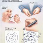 Essential Tremors – a Rare disease