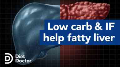 Low carb and intermittent fasting help fatty liver