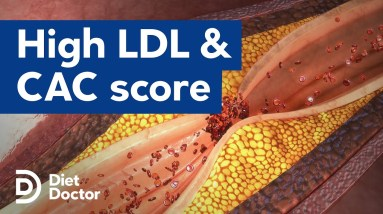 High LDL has low risk of coronary calcium