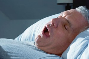 Is there a relationship between orthodontic extractions and Obstructive Sleep Apnoea?
