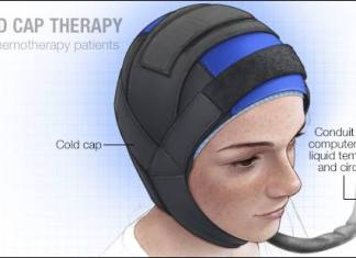 a medical illustration of-cold-cap-therapy for chemotherap patients