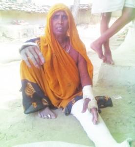 मारपीट मा रजपतिया का तीन जघा से टूट गोड, एक हाथ दुइ जघा से अउर दूसर हाथ एक जघा से टूट