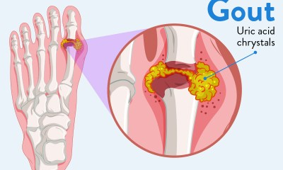 Gout Treatments