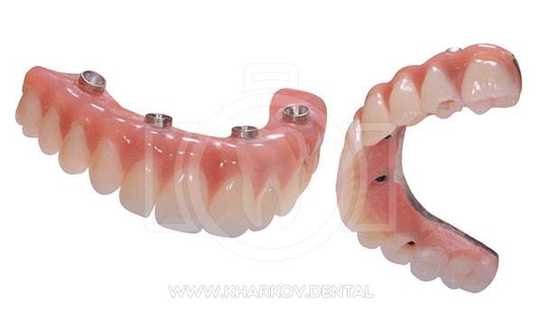 Имплантация зубов All-on-4 (при полном отсутствии зубов) в ...