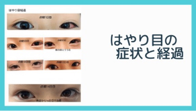 はやり目の症状と経過