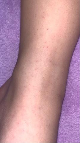 IgA血管炎子供の紫斑