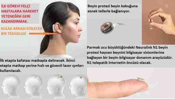 Neuralink-n1-telepatik-beyin-protezi-nasıl-çalışıyor