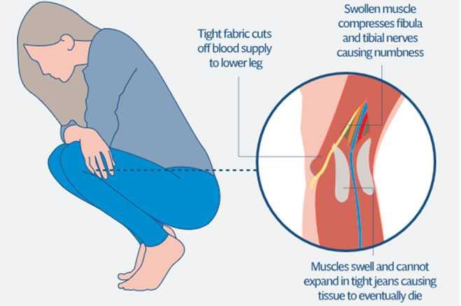 SKinny-Jeans-Health-Risk-khurki.net