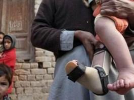 polio case