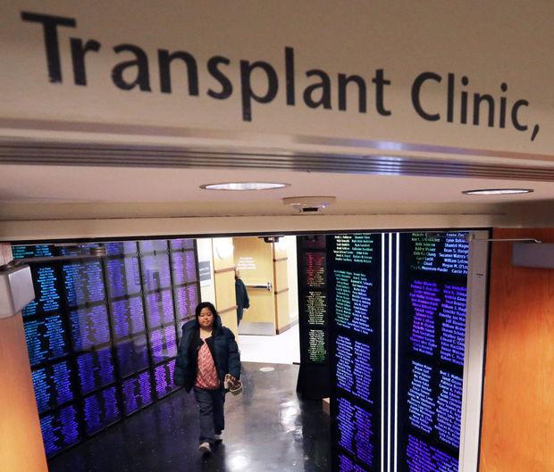 uw transplant center