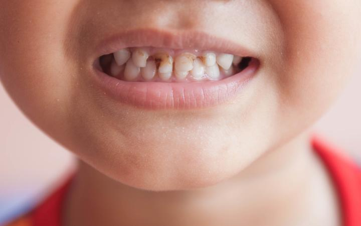 Tooth decay is the major health issue that can affect general health of every individual. Children are at greater risk of tooth decay because children need education on how to follow dental health tips.