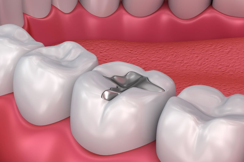 Dental filling to fill the teeth cavities has long been a common teeth restoration. White filling and durable filling are important tooth filling factors poeple want to have for their restored teeth.