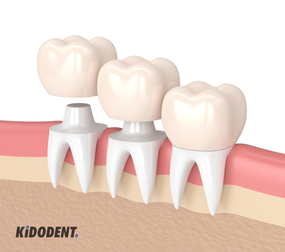 benefits of reshaping teeth