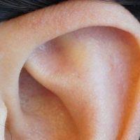 Fístula pré-auricular: Sabe a razão de algumas pessoas terem um furinho na parte de cima da orelha?