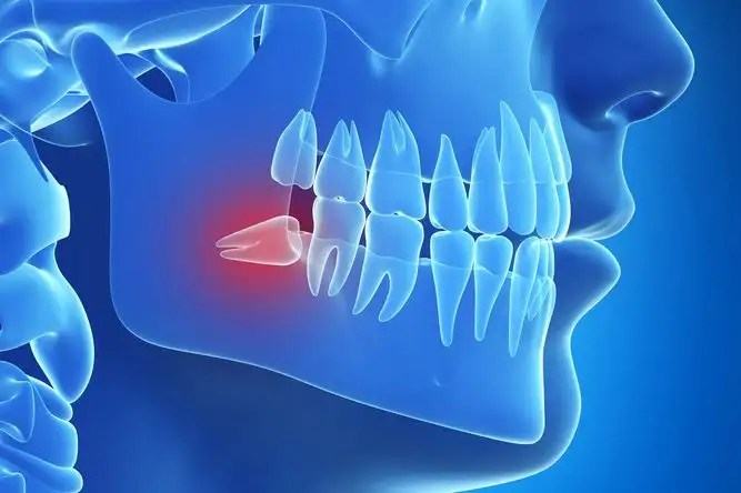 Illustration of an impacted wisdom tooth at an angle beneath the gum line
