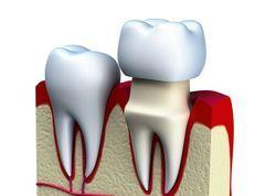 Irving Dentist
