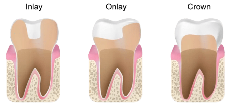 Differences between inlays, onlays, and crowns