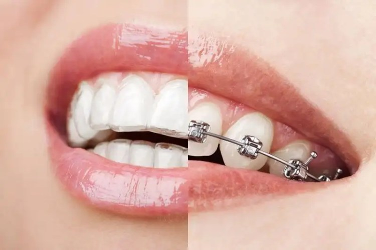 Traditional braces and clear aligners shown on teeth