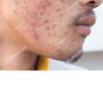 男の乾燥肌でニキビができる原因と注意してほしいニキビケア