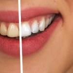 歯の黄ばみ予防でベストは?電動歯ブラシやホワイトニング?