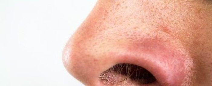 男の毛穴対策や改善
