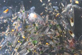 Arctic Sunrise Med Jun Jul2008 - plankton close up showing micro beads