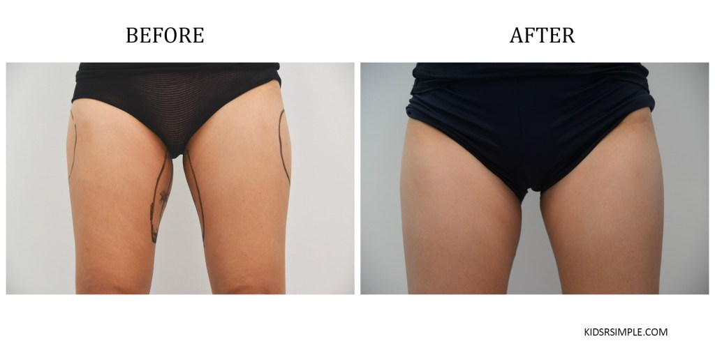 Before After Thighs