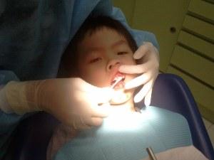 YH having his teeth extracted