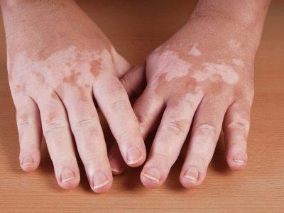 البهاق, 10 وصفات طبيعية لعلاج البهاق عند الأطفال, اعراض البهاق عند الاطفال