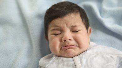 Photo of علاج الخنفرة عند حديثى الولادة