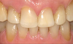 Dental Success Story 2 - After