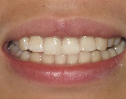 Dental Success Story 3 - After