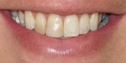 Dental Success Story 1 - Before