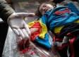 طبيب يعرض رصاصة أزيلت من جسد فتاة سورية