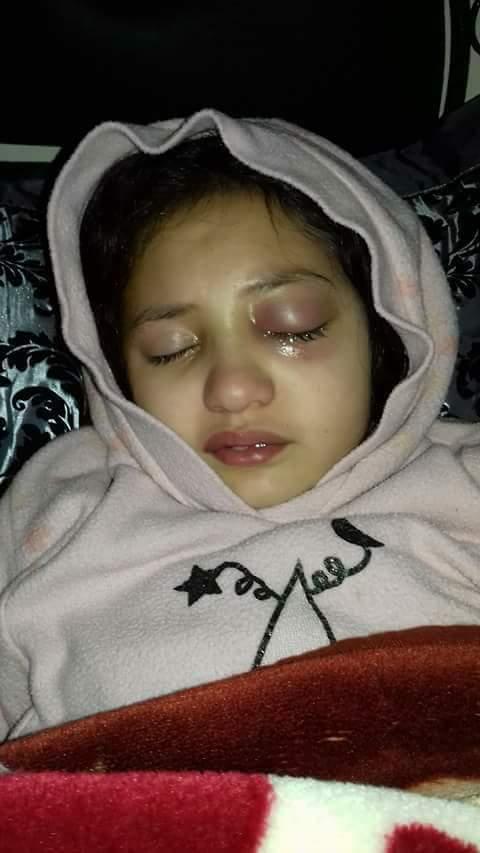 مأساة.. وفاة الطفلة هبة التي عنفتها معلمتها (صور)