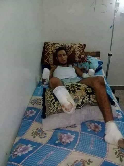 يحتاج المساعدة لتركيب أطراف اصطناعية.. شاب فقد يديه ورجله اليمنى بسبب صعقة كهربائية