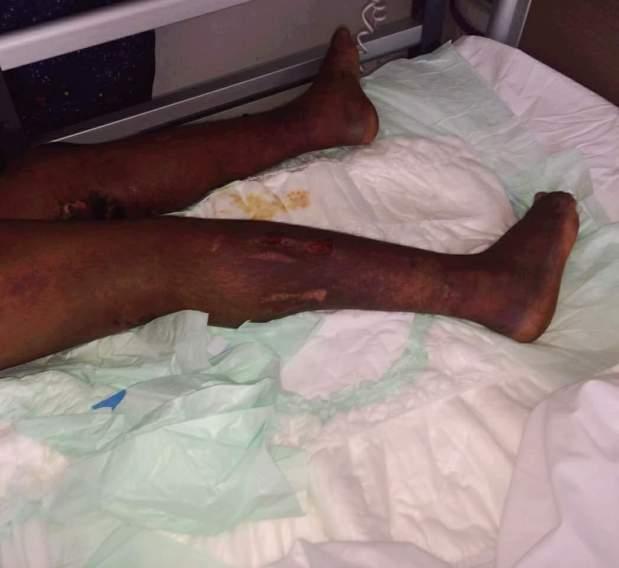 كي وحروق وكدمات وتكدس للدم.. اعتداء همجي على خادمة من طرف مشغلها في كازا (صور)