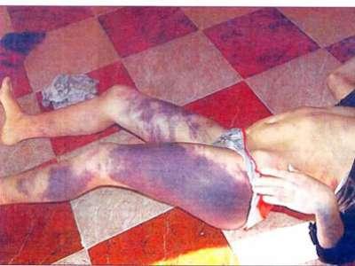 كاينة اللي قتلوها واللي شربوها البول واللي حرقوها بالزيت.. خادمات في مواجهة عائلات سادية (صور)