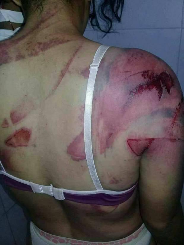 بالصور من تارجيست.. وفاة امرأة عذبها زوجها