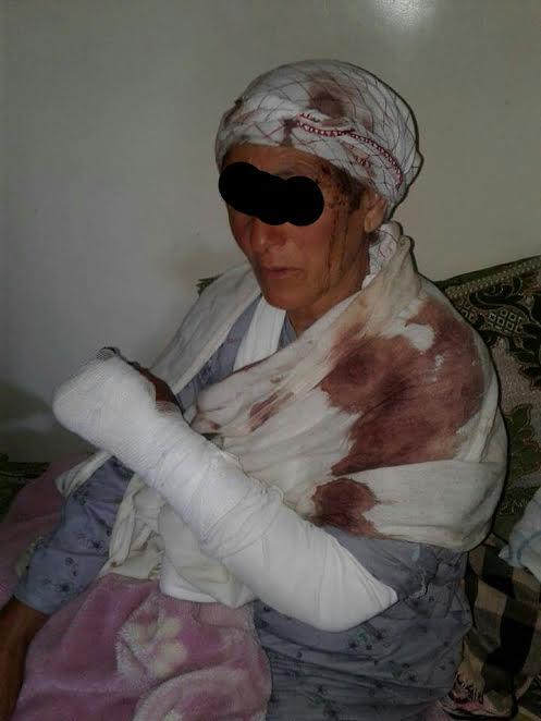 بسبب خلاف بين طفلين.. اعتداء بهراوات وآلات حادة على أسرة! (صور)