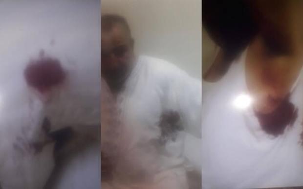 تازة.. الاعتداء بسكين على رئيس جماعة